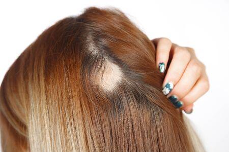 Femme de race blanche de 30 ans avec alopécie localisée, tache chauve sur la tête