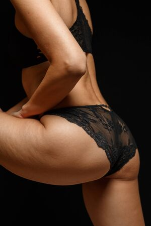cellulite on legs of young slender woman in black lingerie on black background