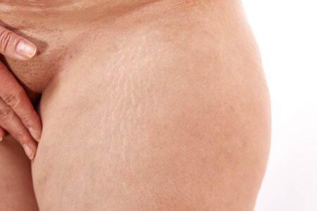 legs of a 40 year old woman with postpartum stretch marks close up.