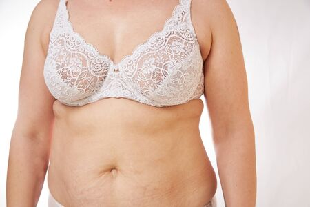 A 40-year-old woman in underwear with sagging Breasts, overweight, stretch marks and cellulite on a white isolated background. concept for medicine and cosmetology