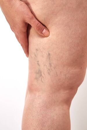 legs of a 40-year-old woman with stretch marks, cellulite and varicose veins close-up Banco de Imagens