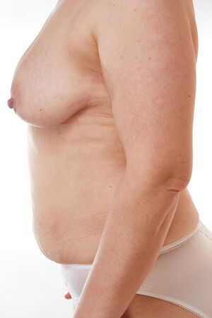 naked 40-year-old woman with sagging Breasts, overweight, stretch marks and cellulite on a white isolated background. concept for medicine and cosmetology Banco de Imagens