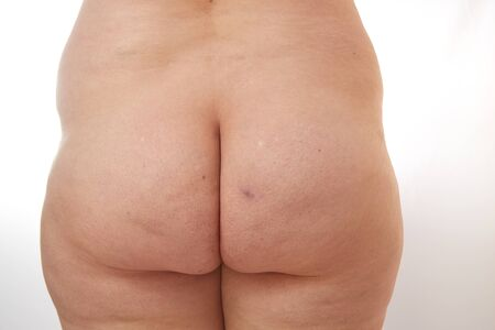legs and buttocks of a 40-year-old woman with stretch marks, cellulite and varicose veins on a white isolated background Banco de Imagens