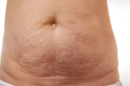 belly of a 40 year old woman with postpartum stretch marks close up