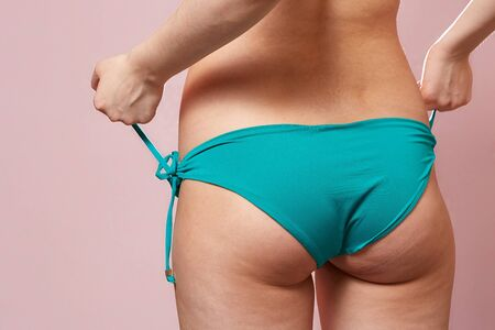 buttocks with cellulite of a young girl in a blue swimsuit . on a pink isolated background