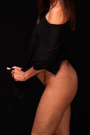 side view. buttocks, legs and stomach with cellulite and stretch marks of a young woman with postpartum changes on a black isolated background. concept for medicine and cosmetology.