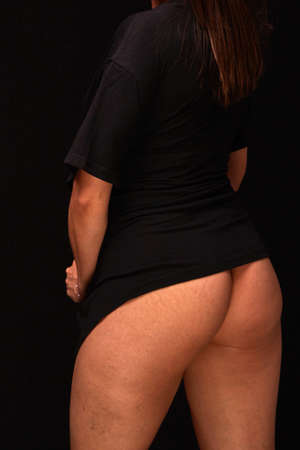 the view from the back. buttocks with cellulite and stretch marks of a young woman with postpartum changes in black clothing on a black isolated background. concept for medicine and cosmetology. Banco de Imagens - 153491333