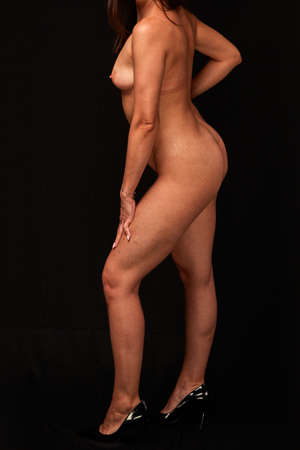 a young naked woman with postpartum changes. on a black isolated background. concept for medicine and cosmetology. Banco de Imagens