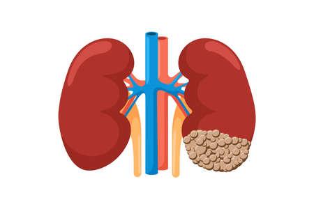 Rein sain et malade atteint d'un cancer. Système génito-urinaire de l'anatomie humaine, organe interne de néoplasme tumoral malsain et forte comparaison. Illustration plate d'oncologie vectorielle