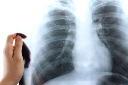 doctor holds an x-ray of the lungs in his hand. Inspect for signs of pneumonia