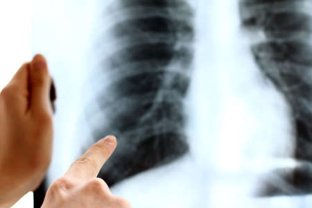 doctor points finger at x-ray of the lungs. necessary procedures for establishing a diagnosis