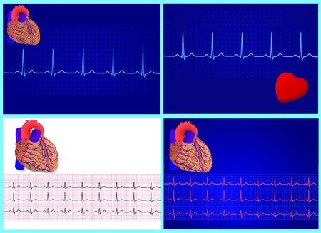 4 heart &amp, cardiograme set for design,  illustration Stock Vector - 6694606