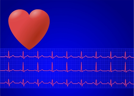 heart and electrocardiogram
