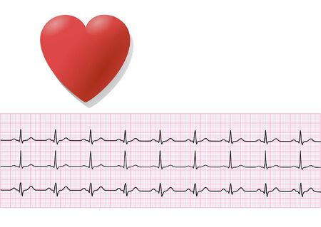 Heart and électrocardiographie