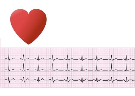 coeur humain et électrocardiogramme