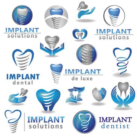 higiene bucal: Los implantes dentales