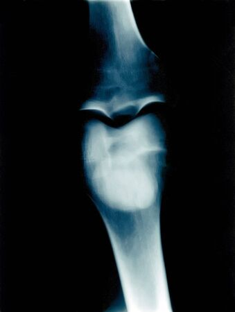 X-Ray of a knee photo