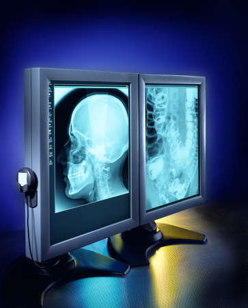 Large X-rays viewed on hospital high end monitors