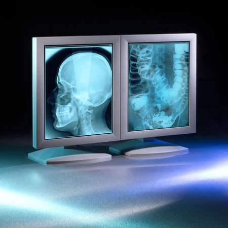 viewed: Large X-rays viewed on hospital high end monitors