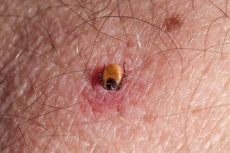 wood tick: Tick burrowing in human skin