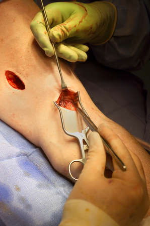 A surgical operation being performed on a patient arm photo