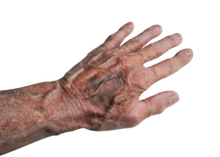 Bruises and Blood Spots Under the Skin that occur on older people, isolated Stock Photo