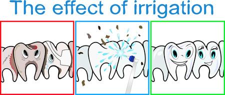medical shower: Effect of teeth irrigation. Vector illustration.