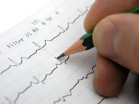 Close up of EKG(electrocardiogram).Doctor looking at EKG results.