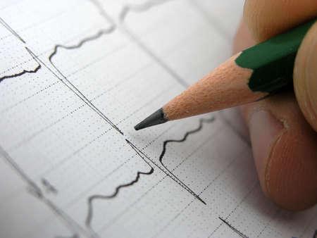 cardioid: Cierre de EKG (electrocardiograma). Doctor en busca EKG resultados.