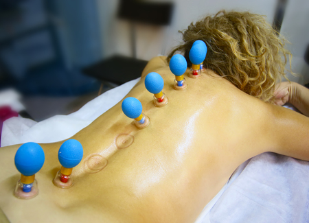 cupping therapy: Cupping therapy. Cups from the patients back