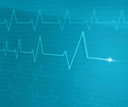 EKG Line Stockfoto