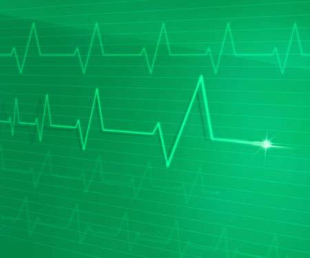 EKG Line photo
