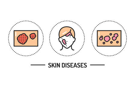 Skin diseases color line icons concept. Isolated vector element. Outline pictograms for web page, mobile app, promo.