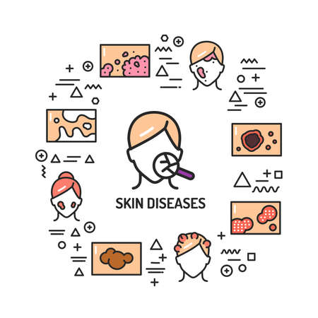 Skin diseases web banner. Infographics with linear icons on white background. Creative idea concept. Isolated outline color illustration