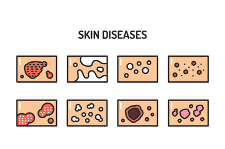 Skin diseases color line icons set. Isolated vector element. Outline pictograms for web page, mobile app, promo.