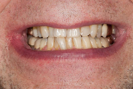 discolored: Close up macro shot of interior of mouth and fillings and crowns on teeth