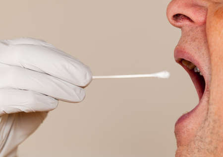 saliva: Gloved hand taking a bodily fluid sample for DNA test from senior male person Stock Photo