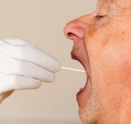 test probe: Mano guantata di prendere un campione di fluido corporeo per il test del DNA da anziano persona di sesso maschile Archivio Fotografico