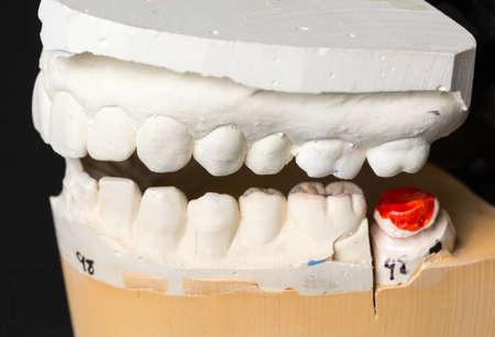 molares: Molde de los dientes en yeso tomado para preparar preparan para ortodoncia