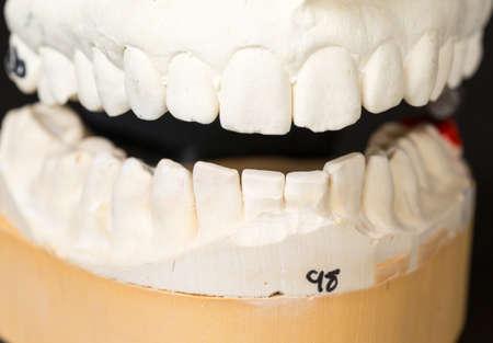 plaster mould: Mould of teeth in plaster taken to prepare brace for orthodontics
