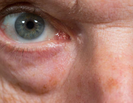 Macro close up of eye of a senior caucasian man with wrinkles and bags under eye
