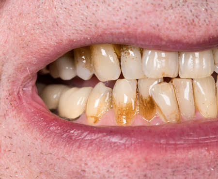 planing: Close up macro of teeth of patient with receding gums and bad plaque on uneven teeth prior to cleaning and root planing