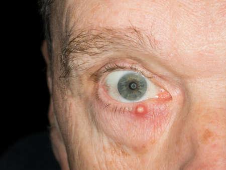 ojo humano: Imagen de la macro infectada orzuelo en el párpado inferior del ojo de un hombre de mayor edad adulta