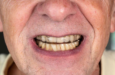 Senior caucasian man putting plastic mouth or night guard onto crooked stained teeth