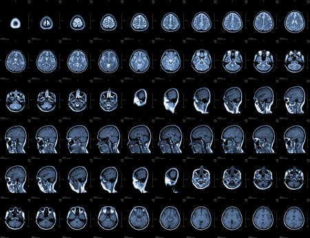 ct: Brain and head MRI or CT images