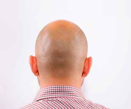 Young adult losing his hair Stock Photo - 13559760