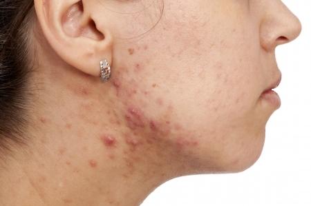 varicelle: Femelle ont quelques probl�mes avec sa peau