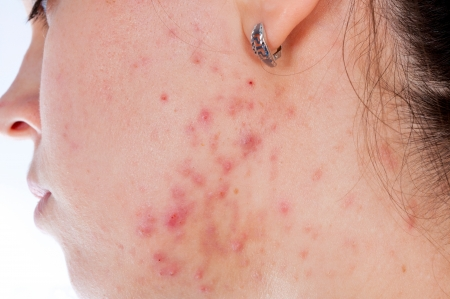 Problems with acnes on the female skin photo