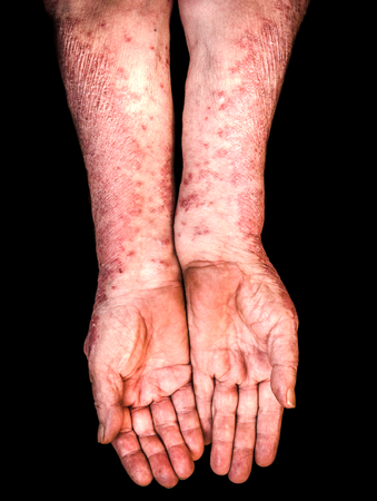 skin disease: Old female hands with psoriasis on black background Stock Photo