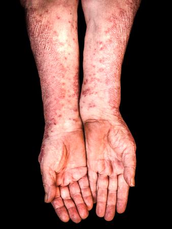 desorden: Viejas manos femeninas con psoriasis en el fondo negro